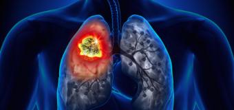 Vacina contra cancer de pulmão já existe e é de graça