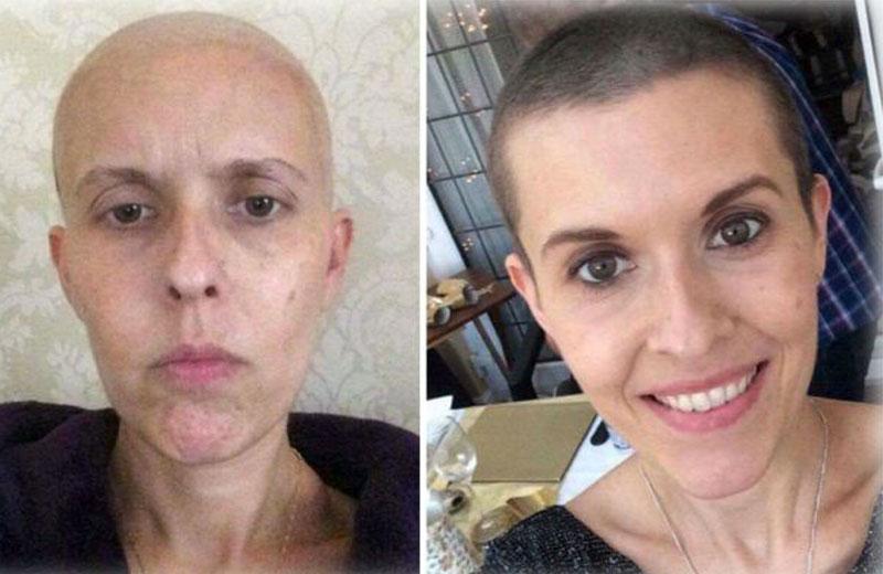 mae-cancer-raro