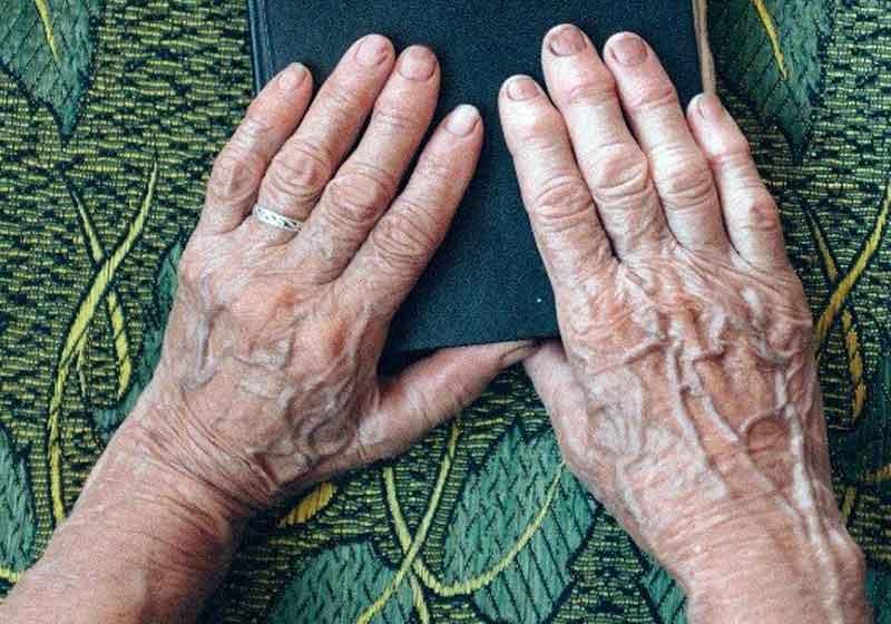 artrite-remedio
